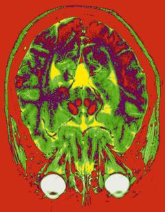 MRI allows doctors to make high-resolution images of human tissue like the brain pictured here from virtually any angle.