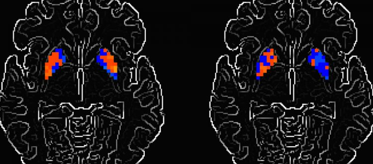 Functional magnetic resonance imaging of a brain